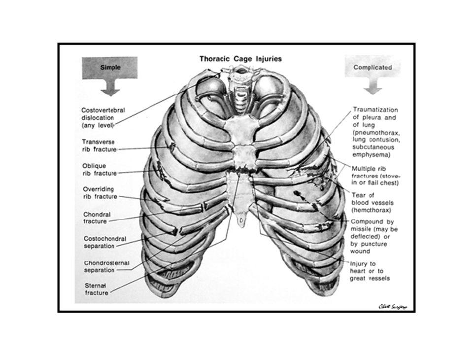 Solunum hareketleri zayıf, Toraks hareketi asimetrik ve unkoordine X-ray, AKG Başlangıç tedavisi, – yeterli ventilasyon, – nemli o2 uygulanması – sıvı replasmanı (aşırı sıvı yüklemesine dikkat) – analjezi.