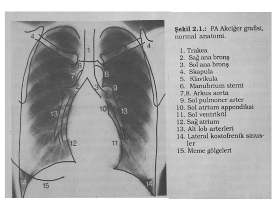 Düz Göğüs Radyografisi Sol ve sağ kalp sınırları iyi seçilebilmeli Diyaframın her iki kubbesi de orta hatta kadar görülebilmeli.