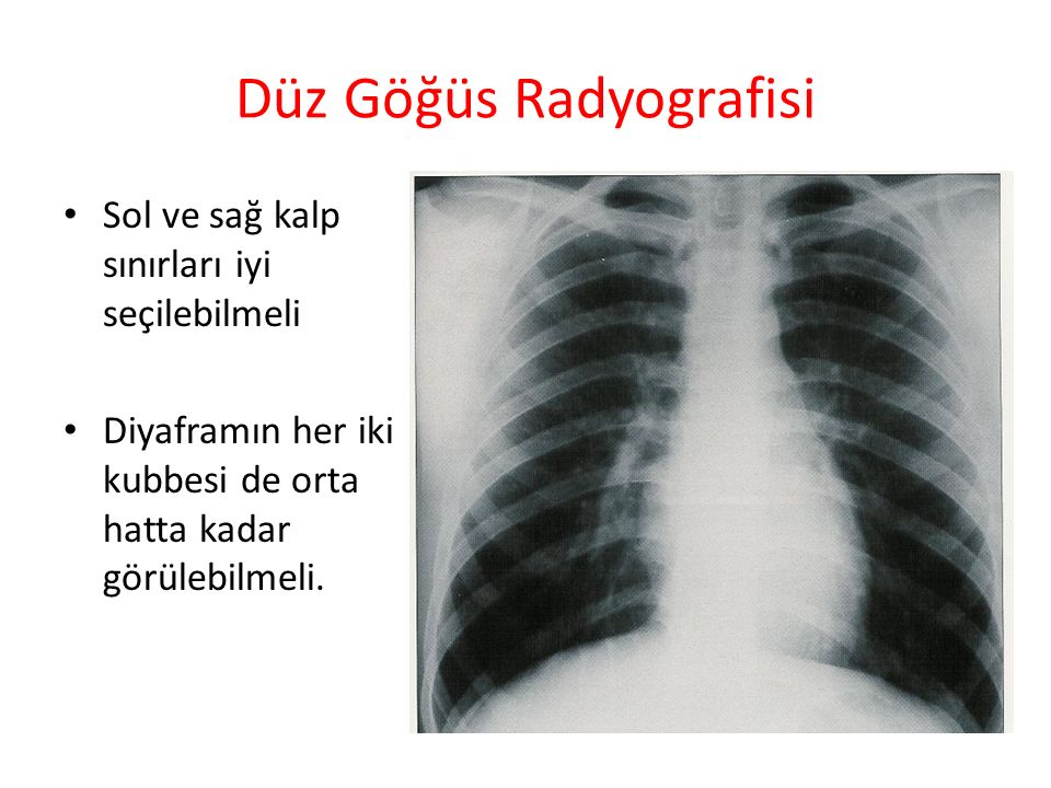 Düz Göğüs Radyografisi İyi bir inspirasyon gerekir.