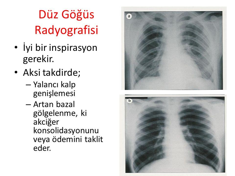 Düz Göğüs Radyografisi İyi bir inspirasyon gerekir. Aksi takdirde; – Yalancı kalp genişlemesi – Artan bazal gölgelenme, ki akciğer konsolidasyonunu ve