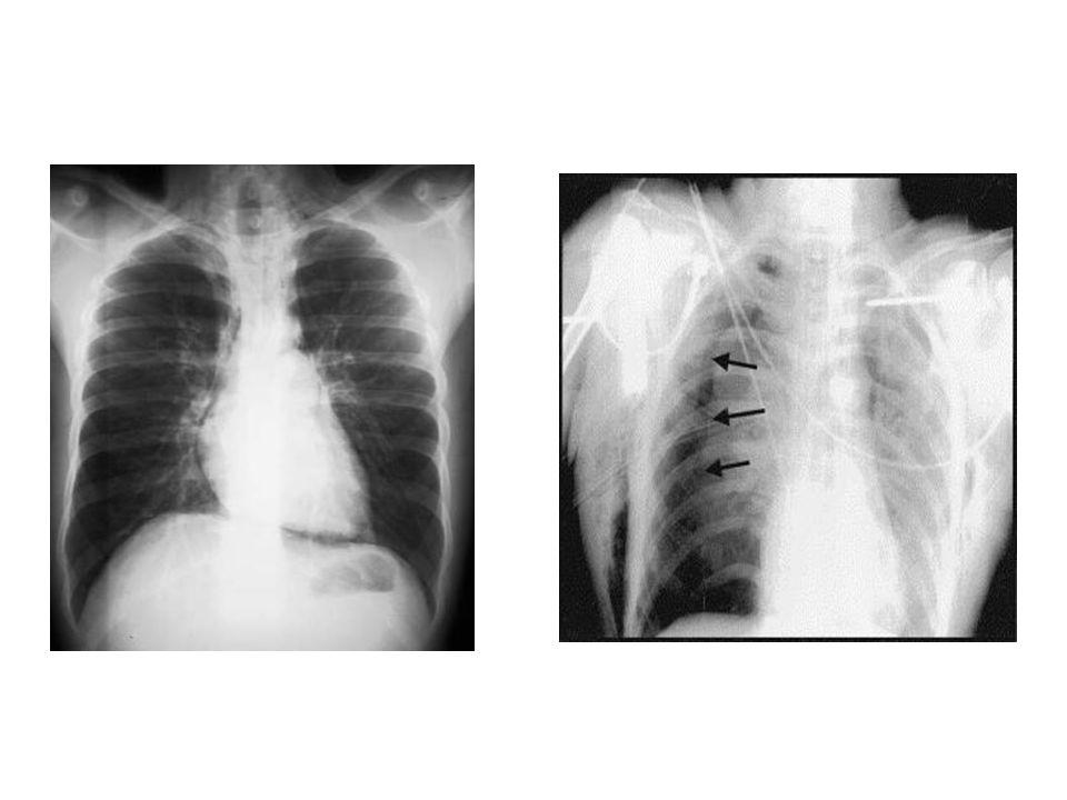  Genellikle, hava kaçağını yenmek ve akciğeri genişletebilmek için, birden çok göğüs tüpü takmak gerekir.