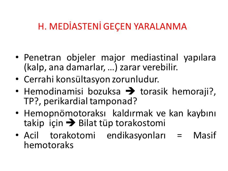 Mediastinal amfizemi varsa  özefagial ve trakeabronşial yaralanma.