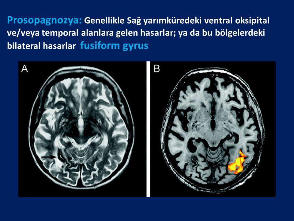 Prosopagnozya: Genellikle Sağ yarımküredeki ventral oksipital ve/veya temporal alanlara gelen hasarlar; ya da bu bölgelerdeki bilateral hasarlar fusif