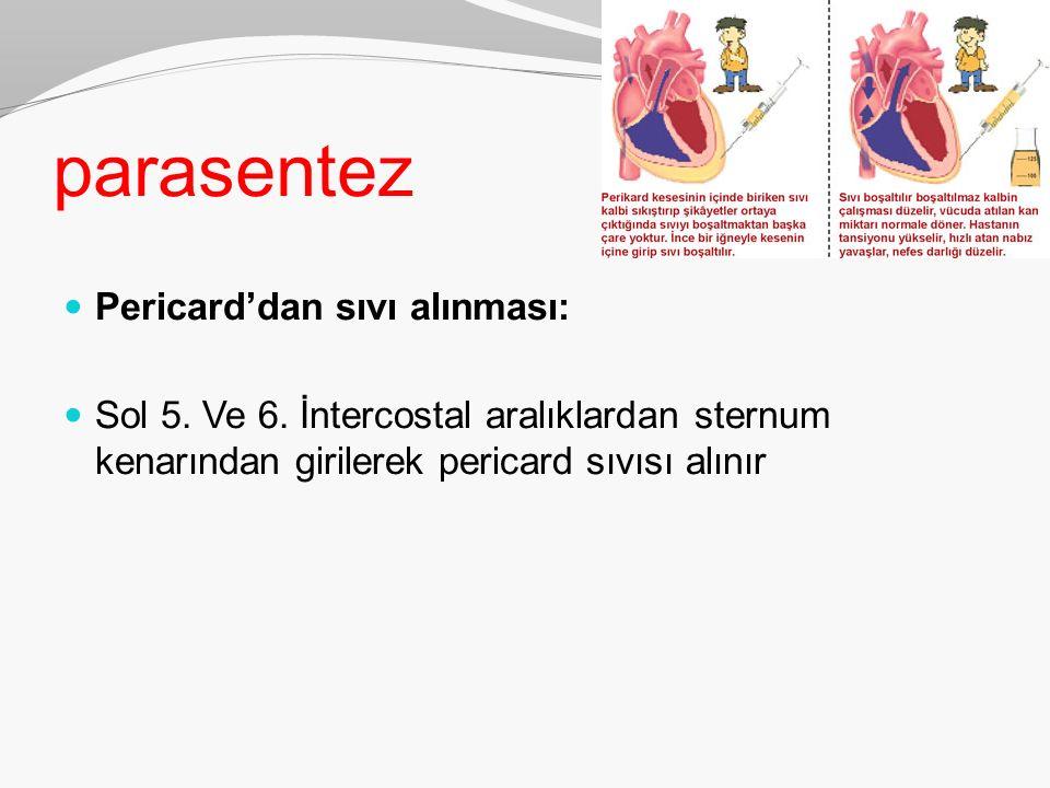 parasentez Pericard'dan sıvı alınması: Sol 5. Ve 6. İntercostal aralıklardan sternum kenarından girilerek pericard sıvısı alınır