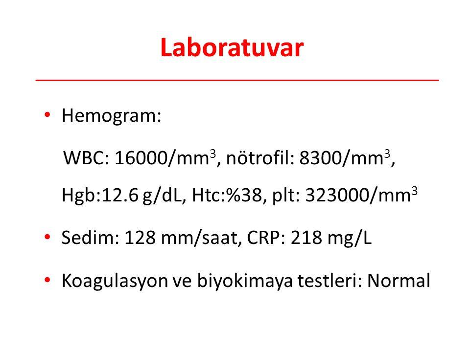 Laboratuvar Hemogram: WBC: 16000/mm 3, nötrofil: 8300/mm 3, Hgb:12.6 g/dL, Htc:%38, plt: 323000/mm 3 Sedim: 128 mm/saat, CRP: 218 mg/L Koagulasyon ve biyokimaya testleri: Normal