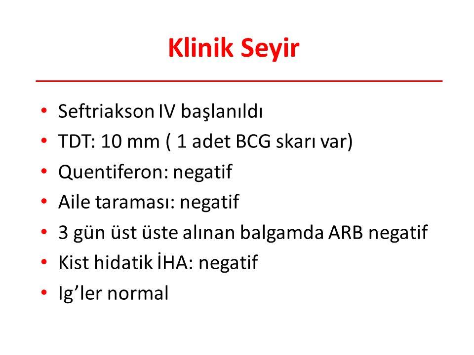 Klinik Seyir Seftriakson IV başlanıldı TDT: 10 mm ( 1 adet BCG skarı var) Quentiferon: negatif Aile taraması: negatif 3 gün üst üste alınan balgamda ARB negatif Kist hidatik İHA: negatif Ig'ler normal