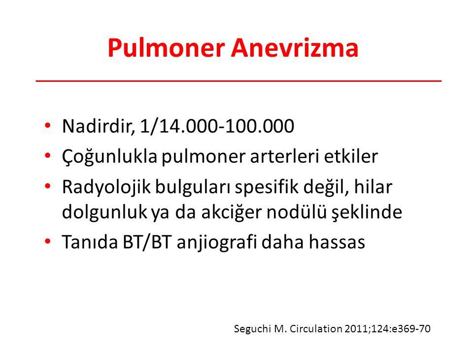 Pulmoner Anevrizma Nadirdir, 1/14.000-100.000 Çoğunlukla pulmoner arterleri etkiler Radyolojik bulguları spesifik değil, hilar dolgunluk ya da akciğer nodülü şeklinde Tanıda BT/BT anjiografi daha hassas Seguchi M.