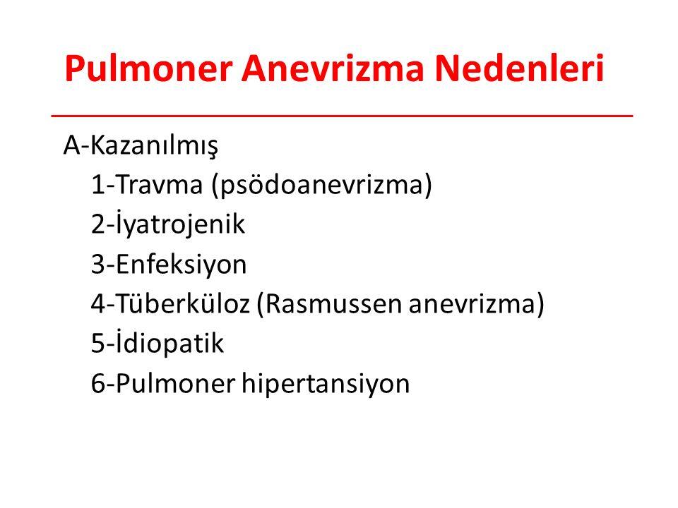 Pulmoner Anevrizma Nedenleri A-Kazanılmış 1-Travma (psödoanevrizma) 2-İyatrojenik 3-Enfeksiyon 4-Tüberküloz (Rasmussen anevrizma) 5-İdiopatik 6-Pulmoner hipertansiyon