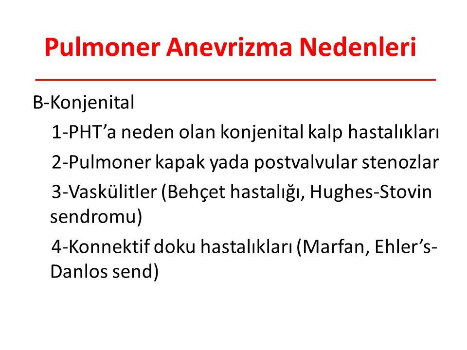 Pulmoner Anevrizma Nedenleri B-Konjenital 1-PHT'a neden olan konjenital kalp hastalıkları 2-Pulmoner kapak yada postvalvular stenozlar 3-Vaskülitler (Behçet hastalığı, Hughes-Stovin sendromu) 4-Konnektif doku hastalıkları (Marfan, Ehler's- Danlos send)