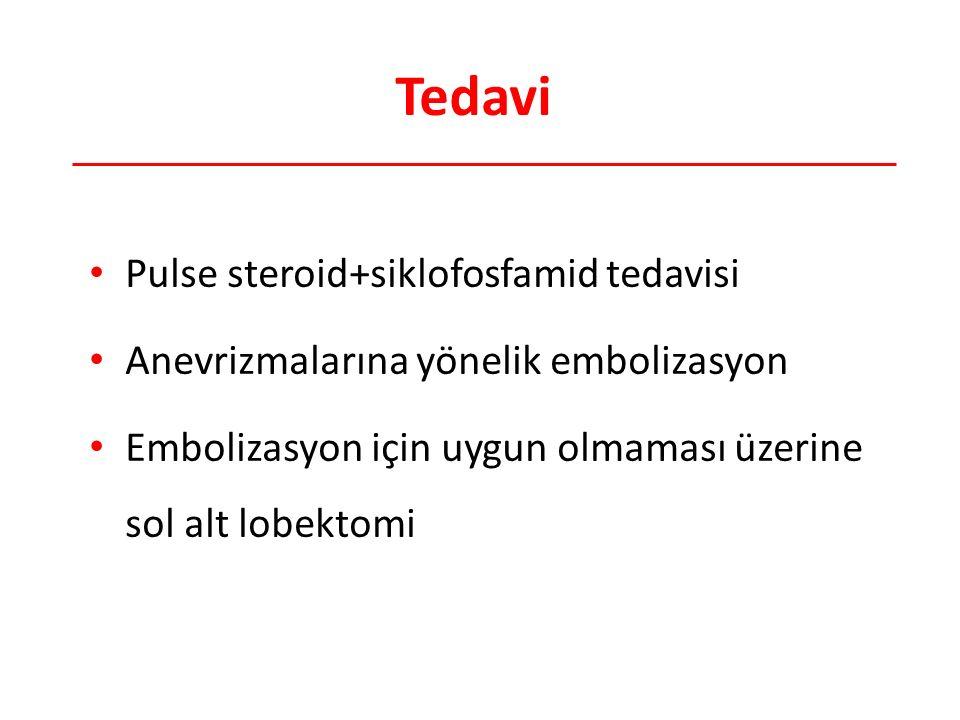 Tedavi Pulse steroid+siklofosfamid tedavisi Anevrizmalarına yönelik embolizasyon Embolizasyon için uygun olmaması üzerine sol alt lobektomi