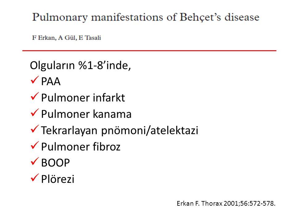 Behçet Hastalığı-Pulmoner Tutulum Olguların %1-8'inde, PAA Pulmoner infarkt Pulmoner kanama Tekrarlayan pnömoni/atelektazi Pulmoner fibroz BOOP Plörezi Erkan F.