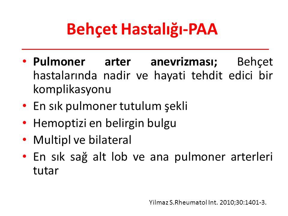 Behçet Hastalığı-PAA Pulmoner arter anevrizması; Behçet hastalarında nadir ve hayati tehdit edici bir komplikasyonu En sık pulmoner tutulum şekli Hemoptizi en belirgin bulgu Multipl ve bilateral En sık sağ alt lob ve ana pulmoner arterleri tutar Yilmaz S.Rheumatol Int.