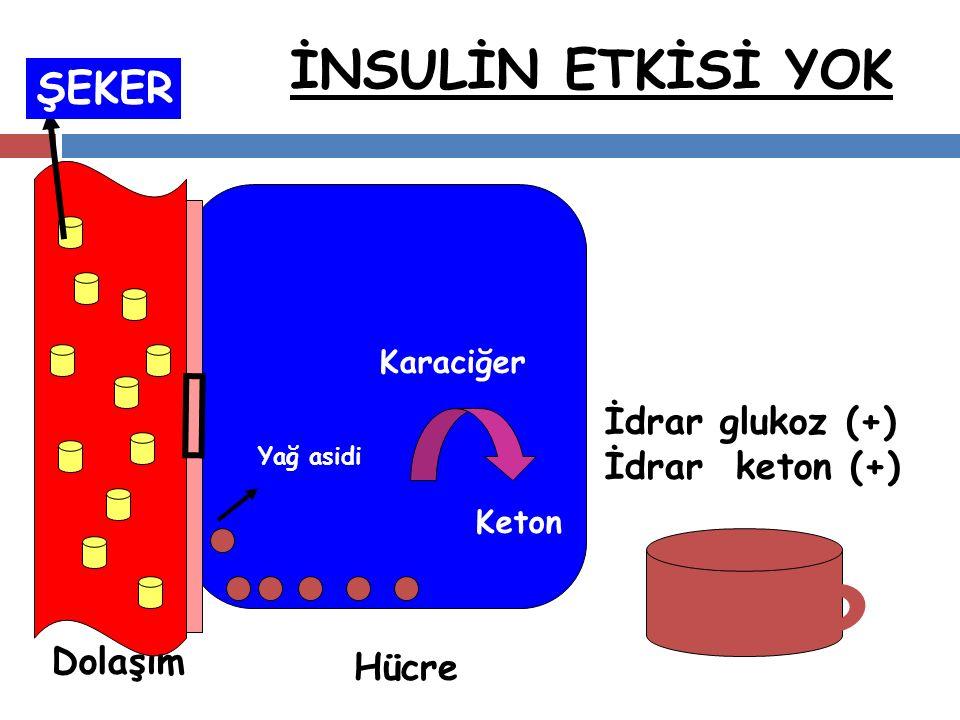 İNSULİN ETKİSİ YOK Yağ asidi Karaciğer Hücre Dolaşım Keton ŞEKER İdrar glukoz (+) İdrar keton (+)
