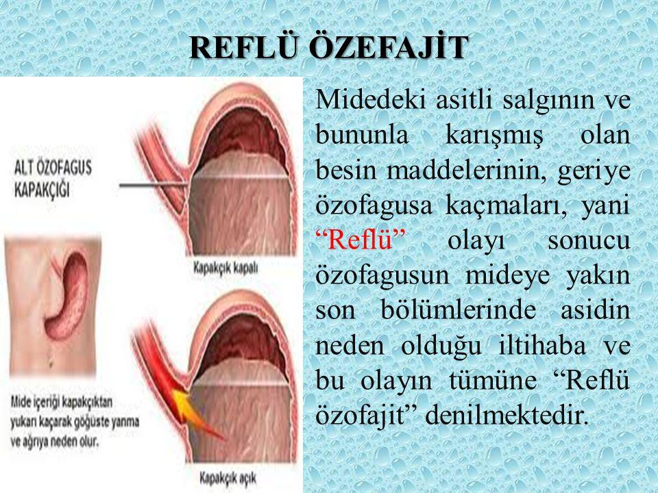 ÜLSERLER Sindirim sisteminin gastrik sekresyonunun erişebildiği bölümde oluşan akut veya kronik ülserasyondur.