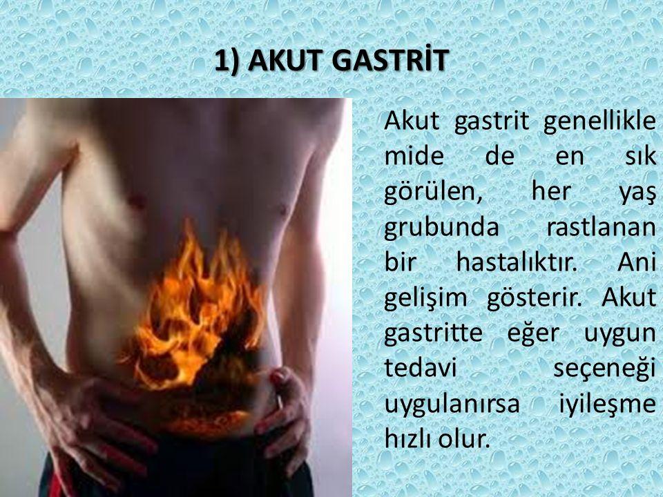 1) AKUT GASTRİT Akut gastrit genellikle mide de en sık görülen, her yaş grubunda rastlanan bir hastalıktır. Ani gelişim gösterir. Akut gastritte eğer