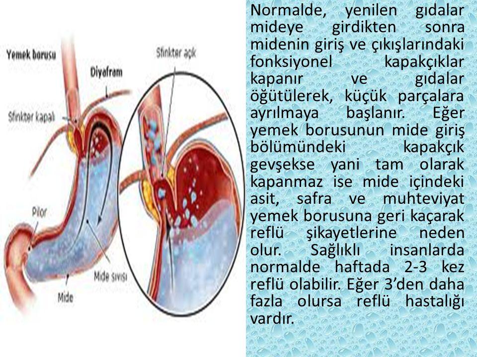 REFLÜ ÖZEFAJİT'İN NEDENLERİ Alt özefageal antireflü mekanizmasının bulunmaması, Sliding tipi hiatal herni, Artmış gastrik volüm, Gastrik sekrasyondaki asit ve pepsin seviyesi, reflünün yarattığı hasarın derecesini etkiler.