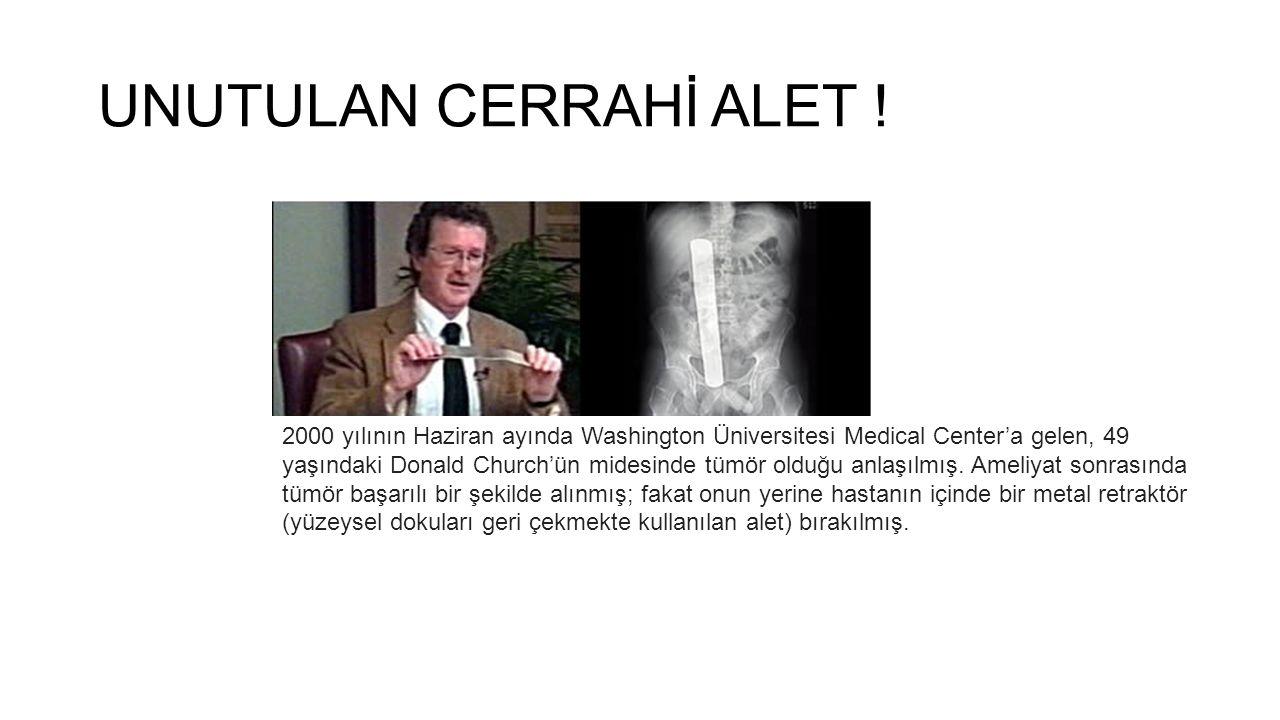 UNUTULAN CERRAHİ ALET ! 2000 yılının Haziran ayında Washington Üniversitesi Medical Center'a gelen, 49 yaşındaki Donald Church'ün midesinde tümör oldu