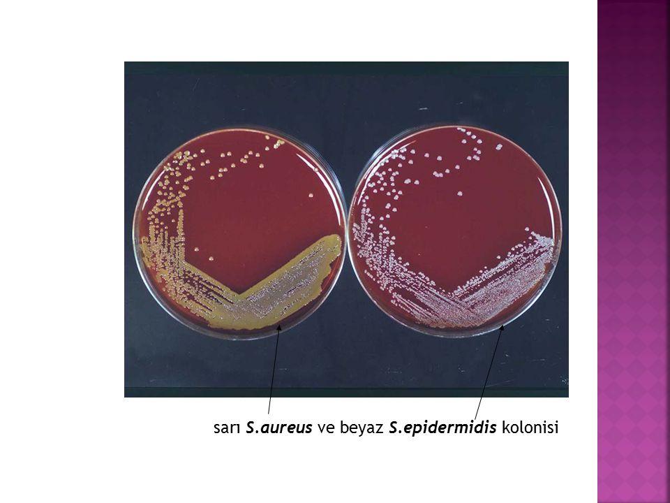 sarı S.aureus ve beyaz S.epidermidis kolonisi