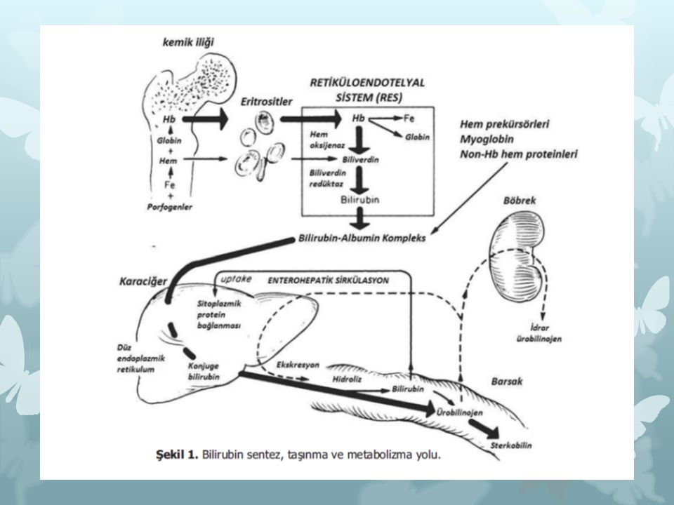 Sınıflandırma  İndirek hiperbilirubinemi (en sık)  Patolojik olmayan - Fizyolojik sarılık  Patolojik olan  Direk hiperbilirubinemi