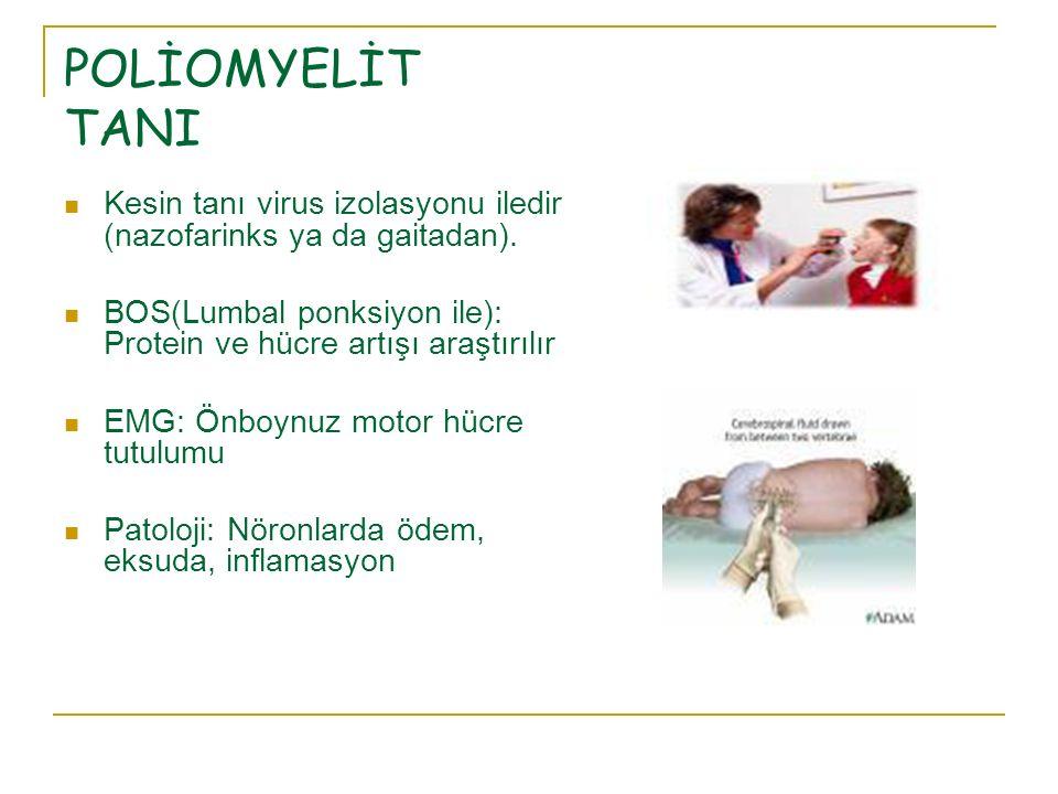 POLİOMYELİT TANI Kesin tanı virus izolasyonu iledir (nazofarinks ya da gaitadan). BOS(Lumbal ponksiyon ile): Protein ve hücre artışı araştırılır EMG: