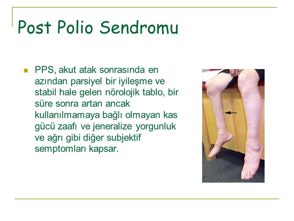 Post Polio Sendromu PPS, akut atak sonrasında en azından parsiyel bir iyileşme ve stabil hale gelen nörolojik tablo, bir süre sonra artan ancak kullan