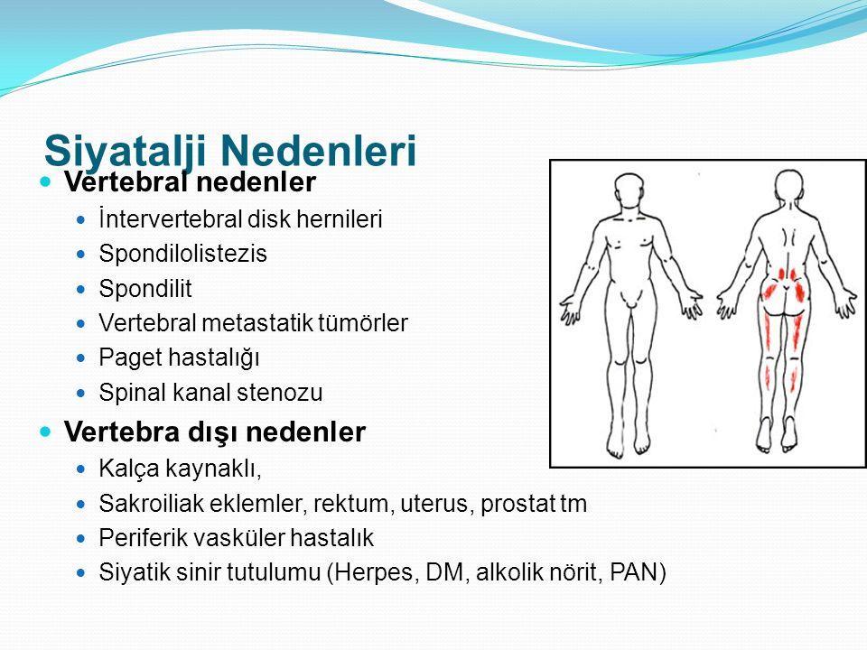 Siyatalji Nedenleri Vertebral nedenler İntervertebral disk hernileri Spondilolistezis Spondilit Vertebral metastatik tümörler Paget hastalığı Spinal k