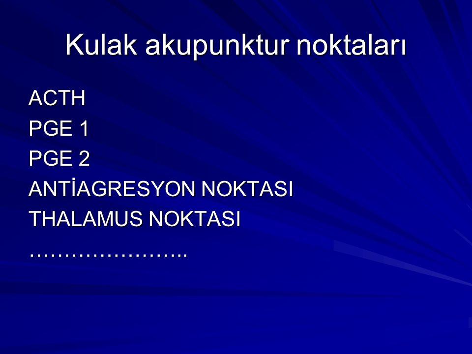 Kulak akupunktur noktaları ACTH PGE 1 PGE 2 ANTİAGRESYON NOKTASI THALAMUS NOKTASI …………………..