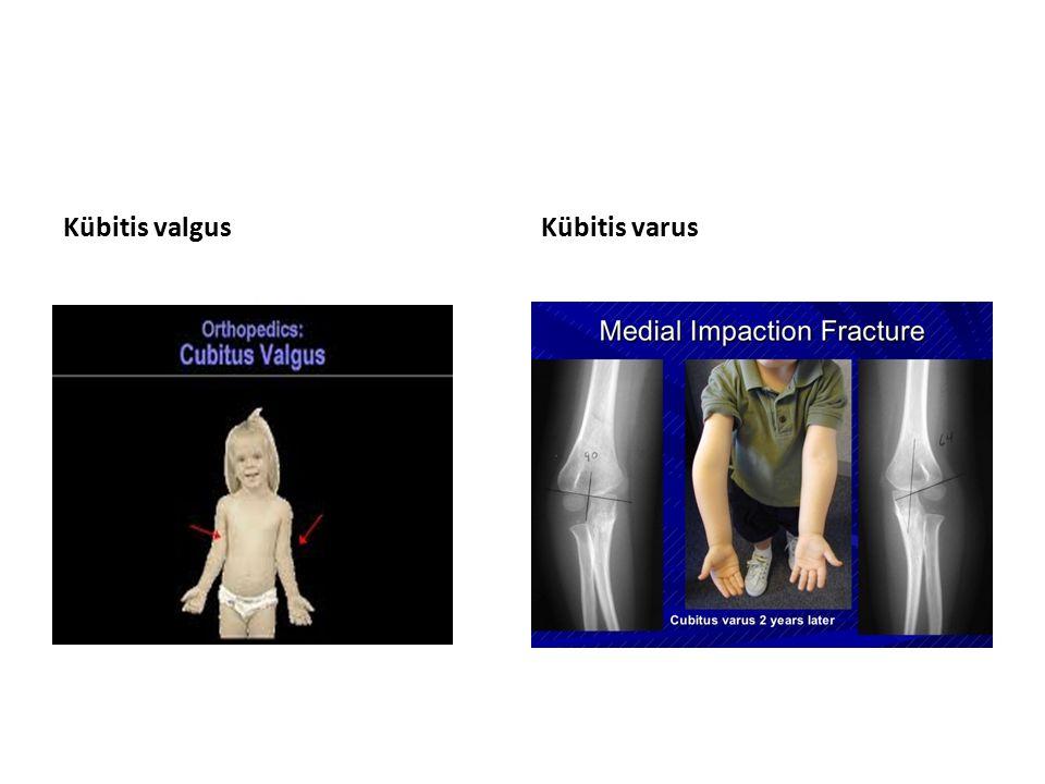 Diz Eklem Hareket Açıklıkları Fleksiyon (130 derece) Ekstansiyon (10 derece)