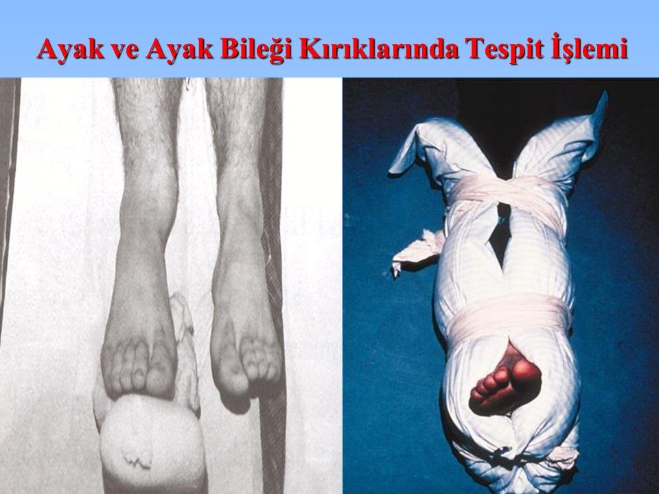 Ayak ve Ayak Bileği Kırıklarında Tespit İşlemi