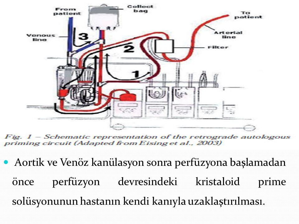 Aortik ve Venöz kanülasyon sonra perfüzyona başlamadan önce perfüzyon devresindeki kristaloid prime solüsyonunun hastanın kendi kanıyla uzaklaştırılma