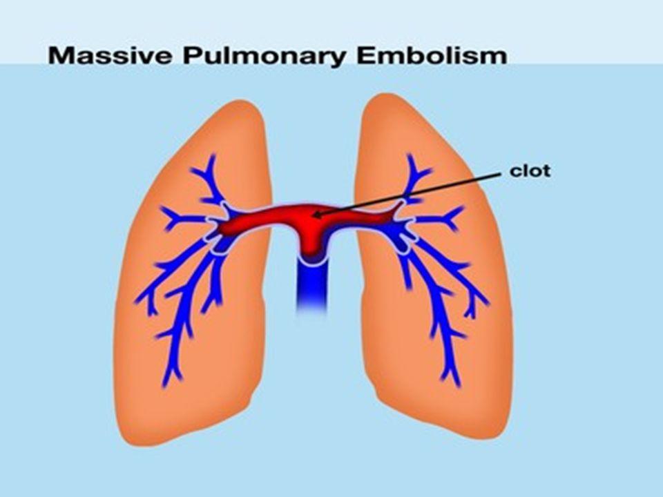 John Gibbon bu projesini gerçekleştirmek için hiç yorulma bilmeden çalışacak ve ilk başarılı kalp- akciğer makinesi deneyi için tam 23 yıl geçecekti.