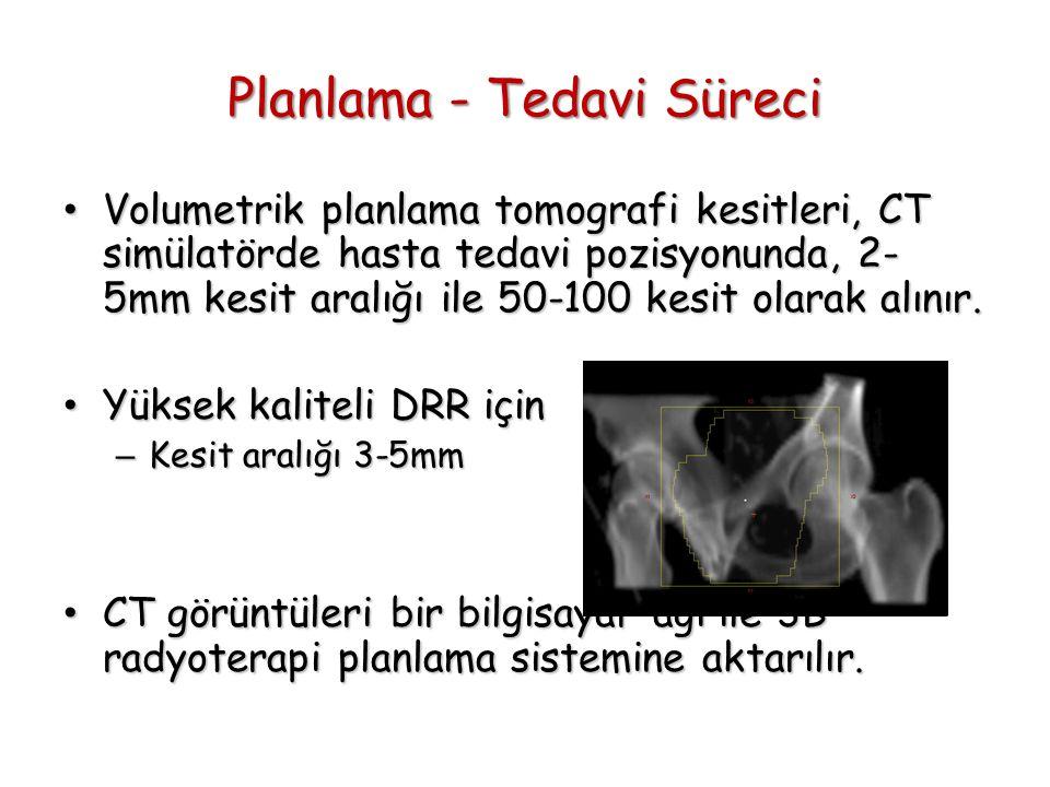 Planlama - Tedavi Süreci Volumetrik planlama tomografi kesitleri, CT simülatörde hasta tedavi pozisyonunda, 2- 5mm kesit aralığı ile 50-100 kesit olar