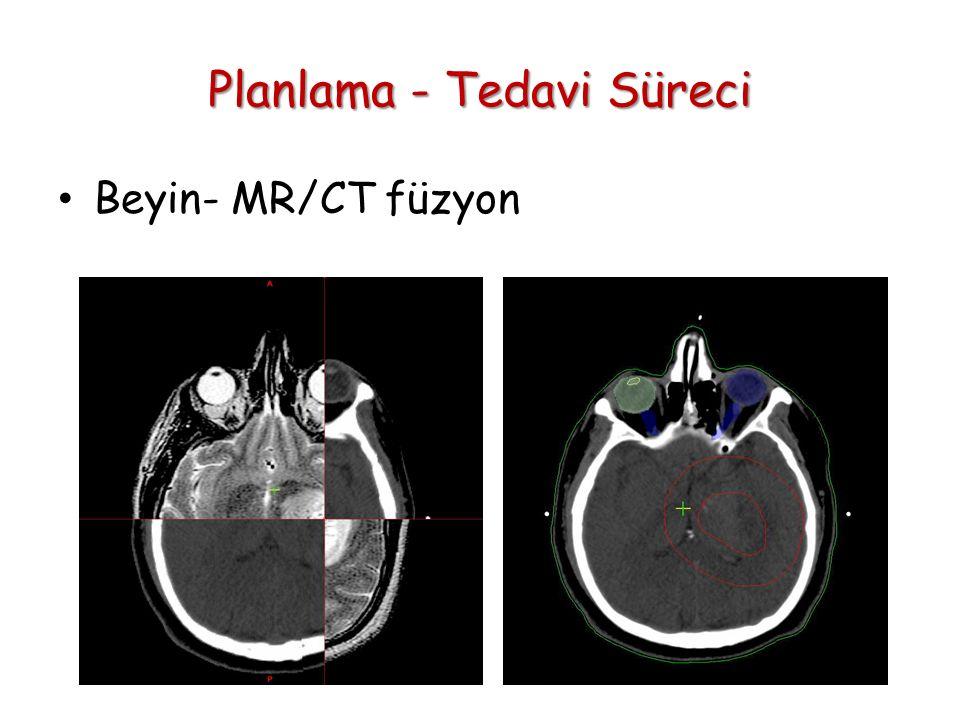 Planlama - Tedavi Süreci Beyin- MR/CT füzyon