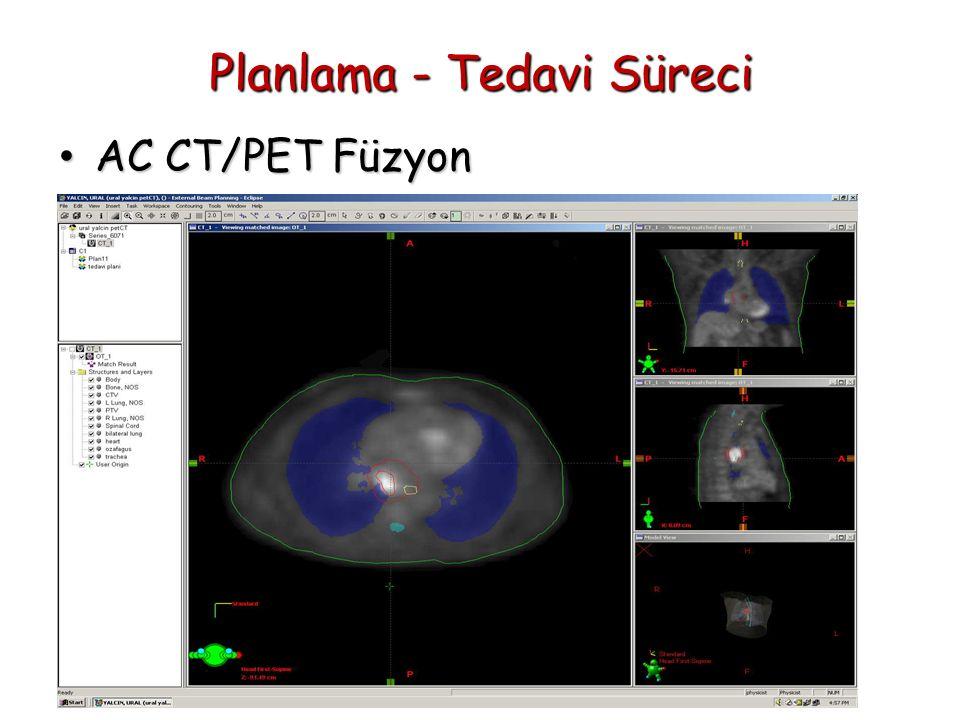Planlama - Tedavi Süreci AC CT/PET Füzyon AC CT/PET Füzyon