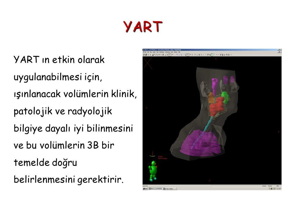 YART YART ın etkin olarak uygulanabilmesi için, ışınlanacak volümlerin klinik, patolojik ve radyolojik bilgiye dayalı iyi bilinmesini ve bu volümlerin