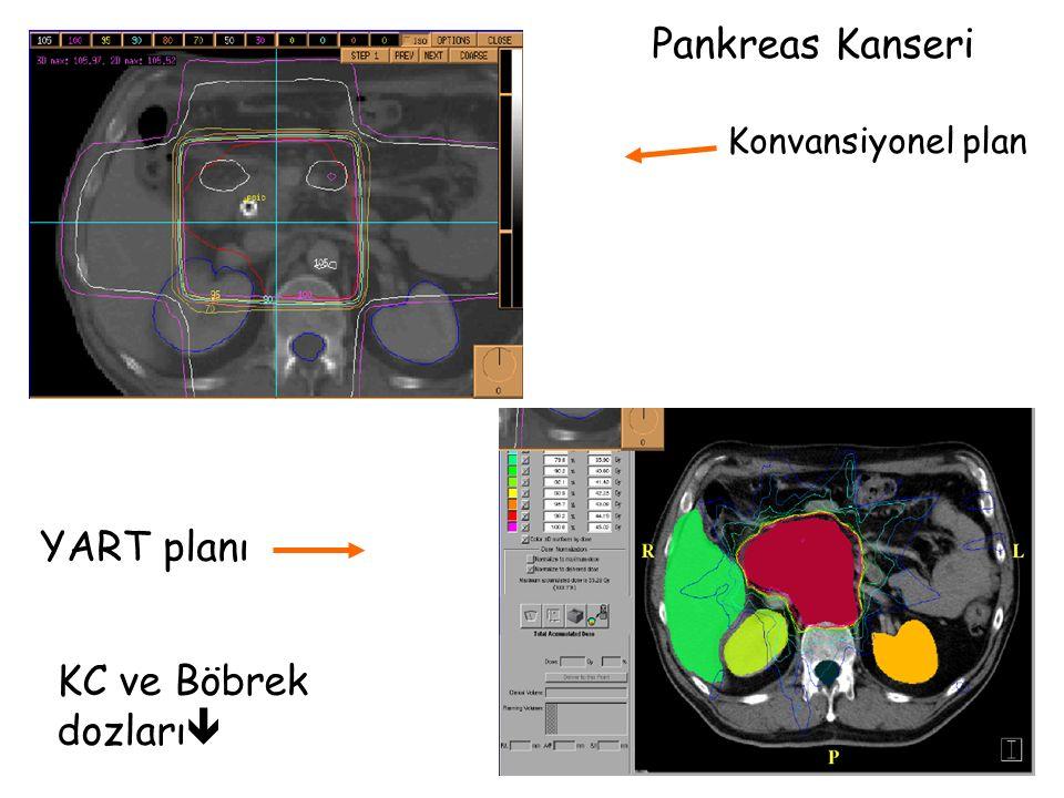 Konvansiyonel plan YART planı Pankreas Kanseri KC ve Böbrek dozları 