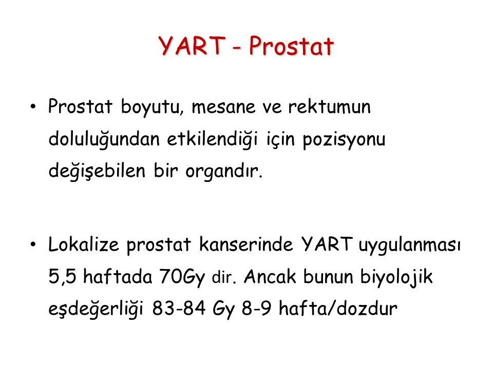 YART - Prostat Prostat boyutu, mesane ve rektumun doluluğundan etkilendiği için pozisyonu değişebilen bir organdır. Lokalize prostat kanserinde YART u