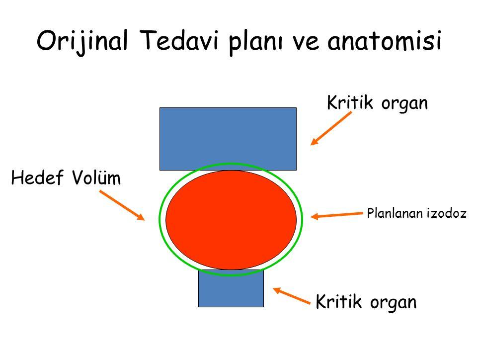 Orijinal Tedavi planı ve anatomisi Kritik organ Hedef Volüm Planlanan izodoz