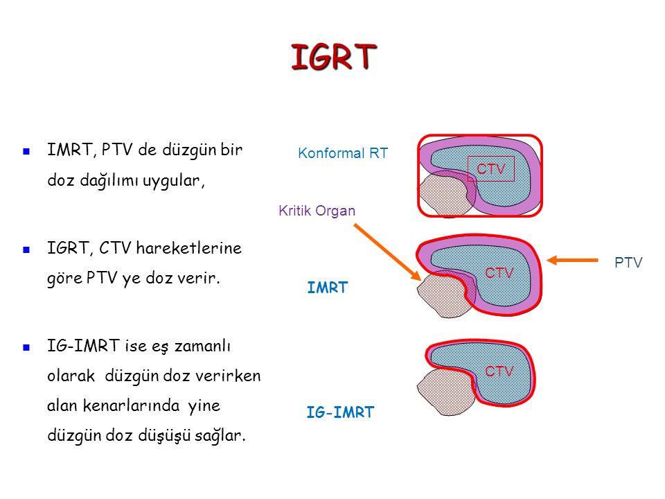 IGRT CTV PTV Kritik Organ Konformal RT IMRT IG-IMRT IMRT, PTV de düzgün bir doz dağılımı uygular, IGRT, CTV hareketlerine göre PTV ye doz verir. IG-IM