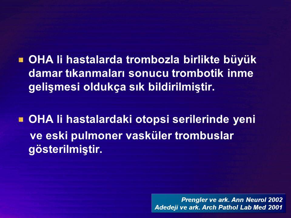 OHA li hastalarda trombozla birlikte büyük damar tıkanmaları sonucu trombotik inme gelişmesi oldukça sık bildirilmiştir.