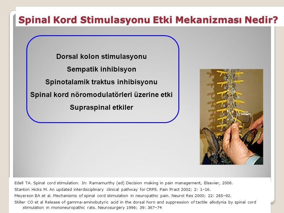 Spinal Kord Stimulasyonu Etki Mekanizması Nedir.Edell TA.