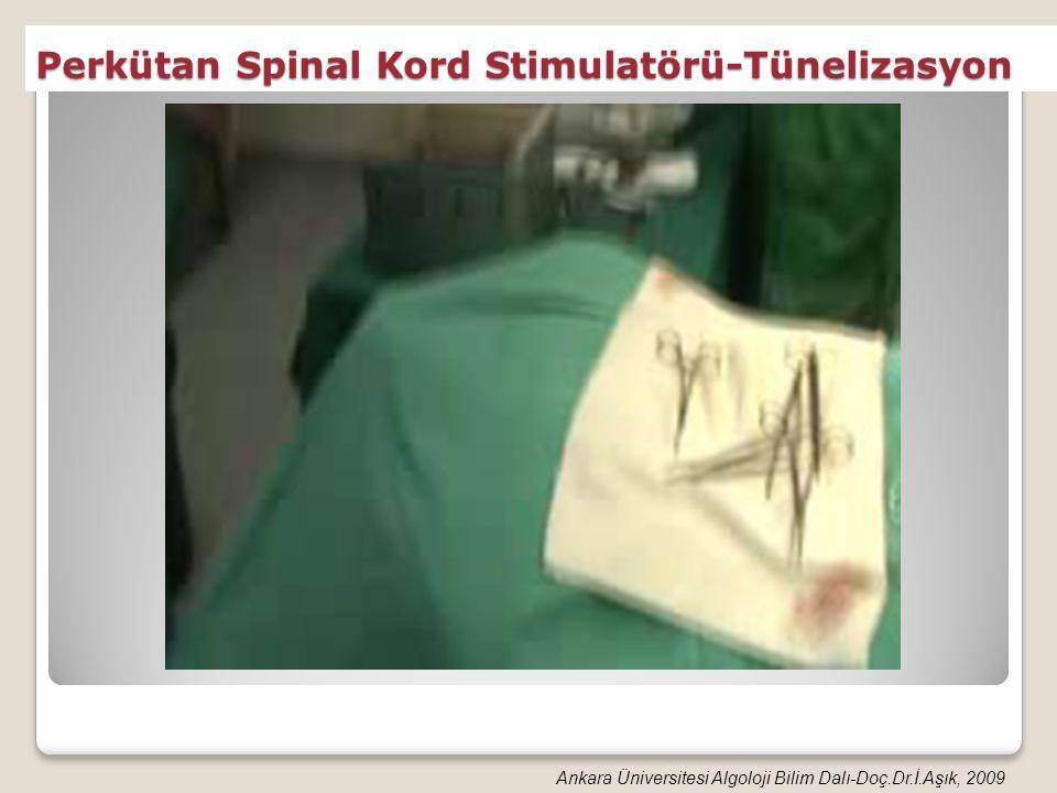 Perkütan Spinal Kord Stimulatörü-Tünelizasyon Ankara Üniversitesi Algoloji Bilim Dalı-Doç.Dr.İ.Aşık, 2009