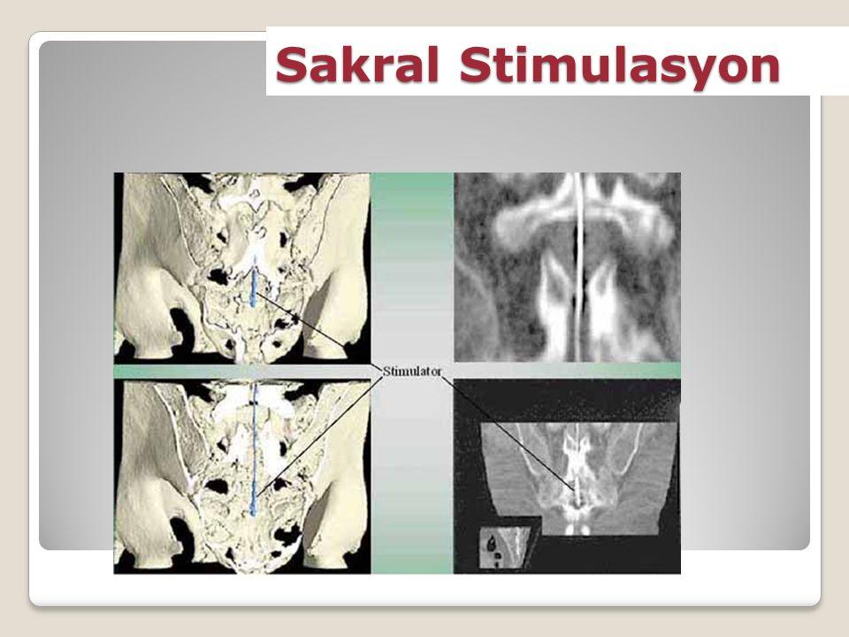 Sakral Stimulasyon