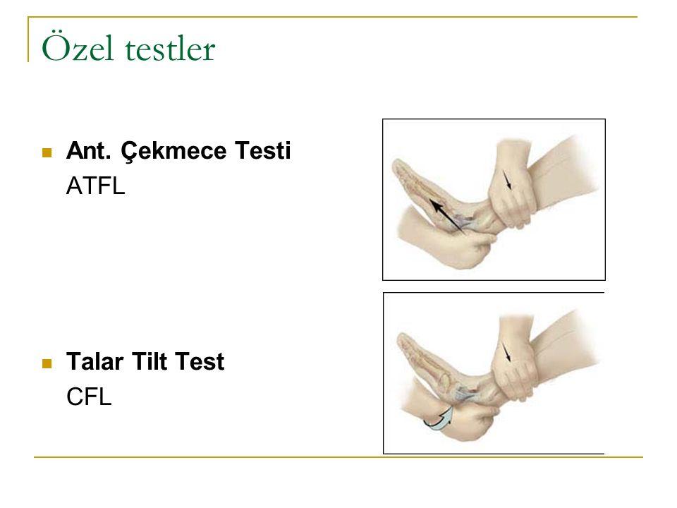 Özel testler Ant. Çekmece Testi ATFL Talar Tilt Test CFL