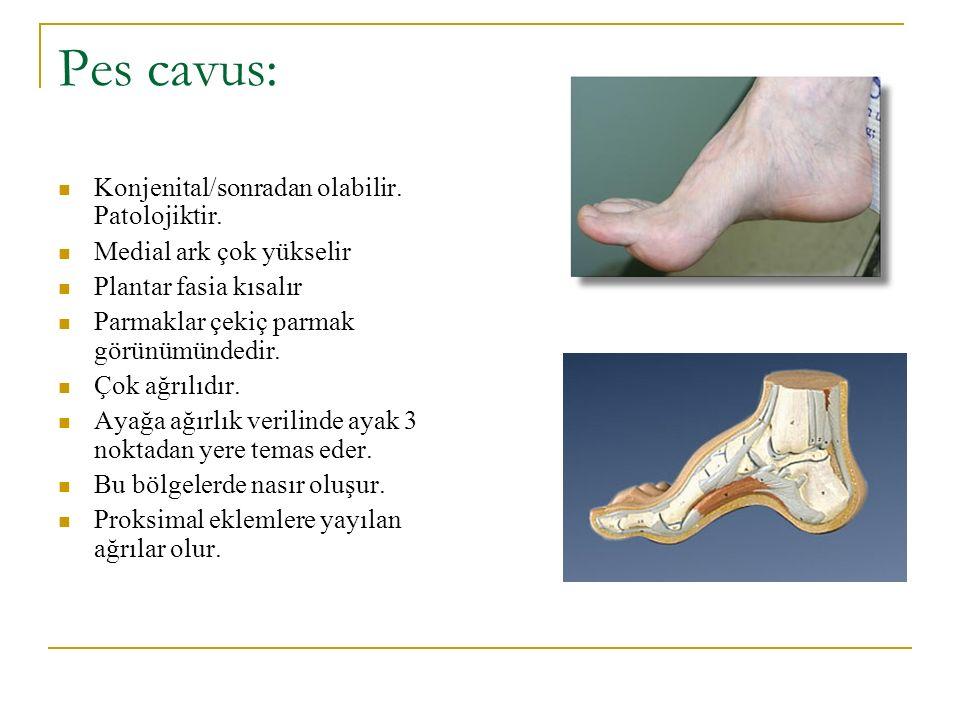 Pes cavus: Konjenital/sonradan olabilir. Patolojiktir. Medial ark çok yükselir Plantar fasia kısalır Parmaklar çekiç parmak görünümündedir. Çok ağrılı