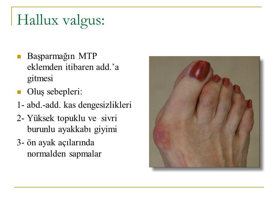 Hallux valgus: Başparmağın MTP eklemden itibaren add.'a gitmesi Oluş sebepleri: 1- abd.-add. kas dengesizlikleri 2- Yüksek topuklu ve sivri burunlu ay