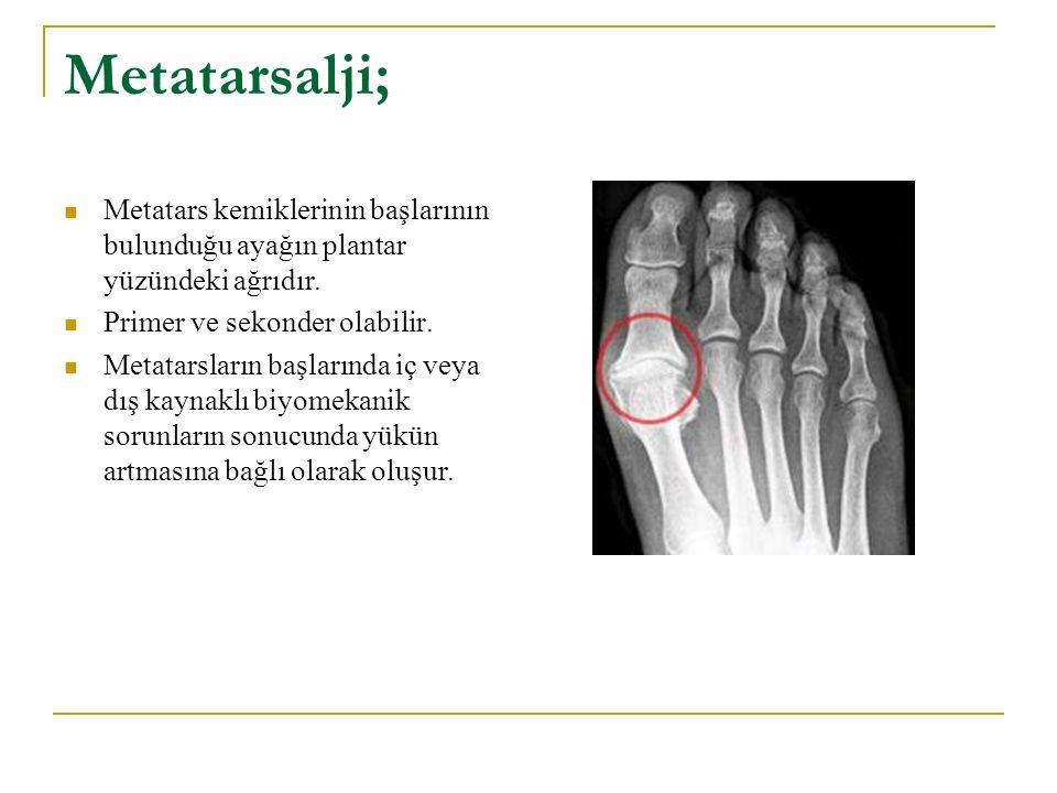 Metatarsalji; Metatars kemiklerinin başlarının bulunduğu ayağın plantar yüzündeki ağrıdır. Primer ve sekonder olabilir. Metatarsların başlarında iç ve