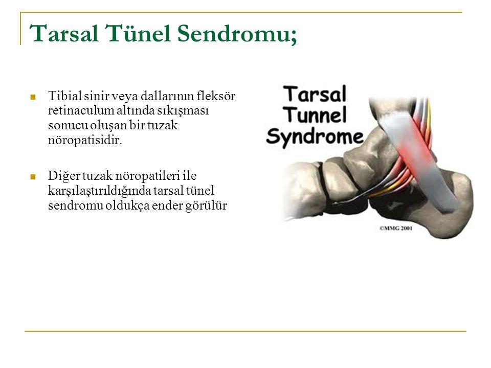 Tarsal Tünel Sendromu; Tibial sinir veya dallarının fleksör retinaculum altında sıkışması sonucu oluşan bir tuzak nöropatisidir. Diğer tuzak nöropatil