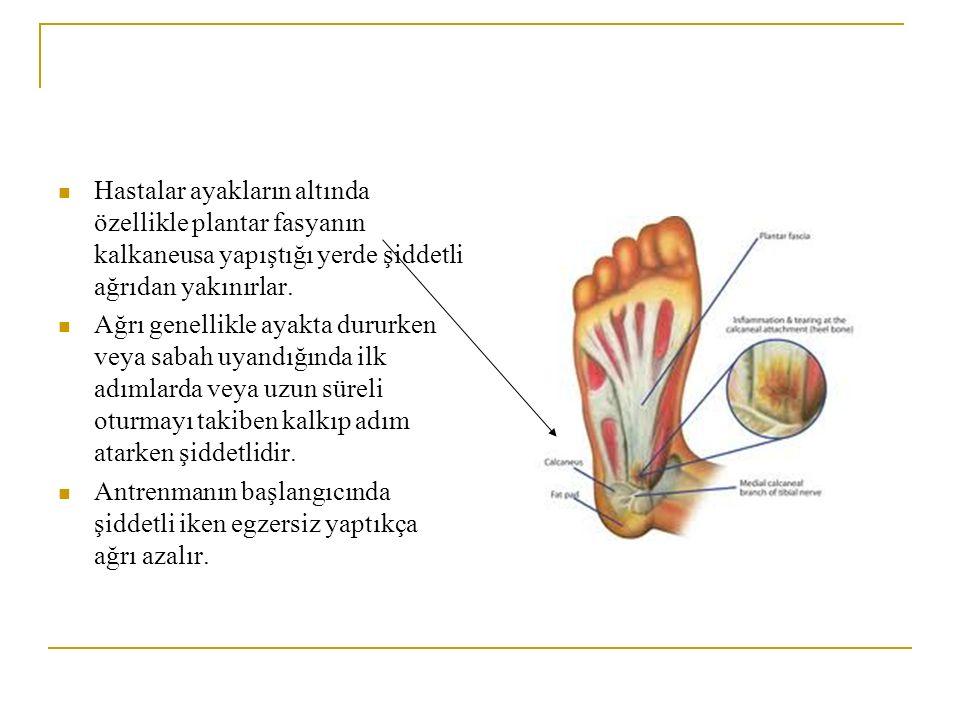 Hastalar ayakların altında özellikle plantar fasyanın kalkaneusa yapıştığı yerde şiddetli ağrıdan yakınırlar. Ağrı genellikle ayakta dururken veya sab