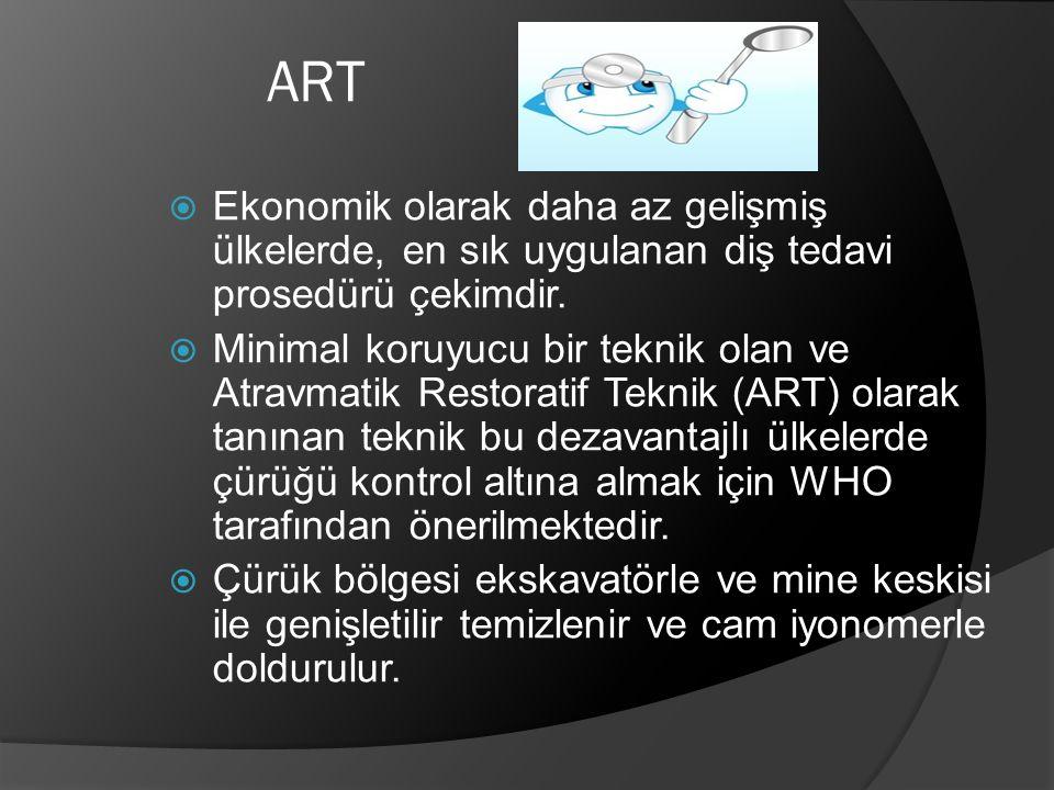 ART  Ekonomik olarak daha az gelişmiş ülkelerde, en sık uygulanan diş tedavi prosedürü çekimdir.  Minimal koruyucu bir teknik olan ve Atravmatik Res